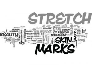 What are stretch marks and how to remove them?